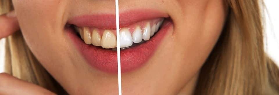 patient smile before and after